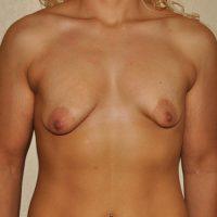 Breast Augmentation with Mastopexy