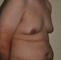 Male Breast Reduction (Correction of Gynecomastia)